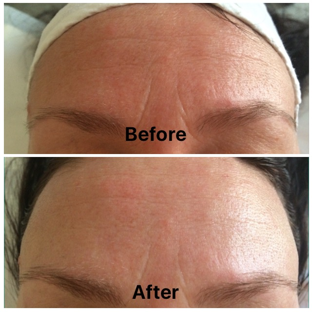 Environ caci facial comparison