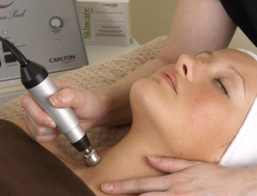 NEW Diamond Microdermabrasion Treatment