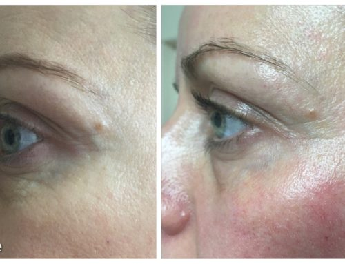 NEW Bespoke Eye Treatment