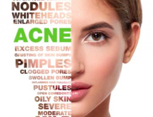 Bespoke Acne Treatment