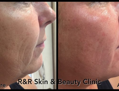 Bespoke Facial Treatments Get Results….