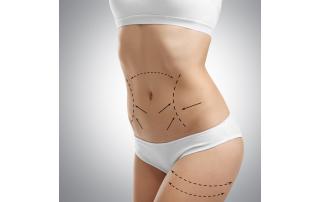 Advanced Body Treatments