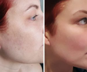 Before & After Facial Treatment